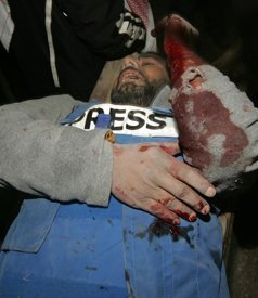 journaliste-palestinien-blessé-a-gaza.jpg